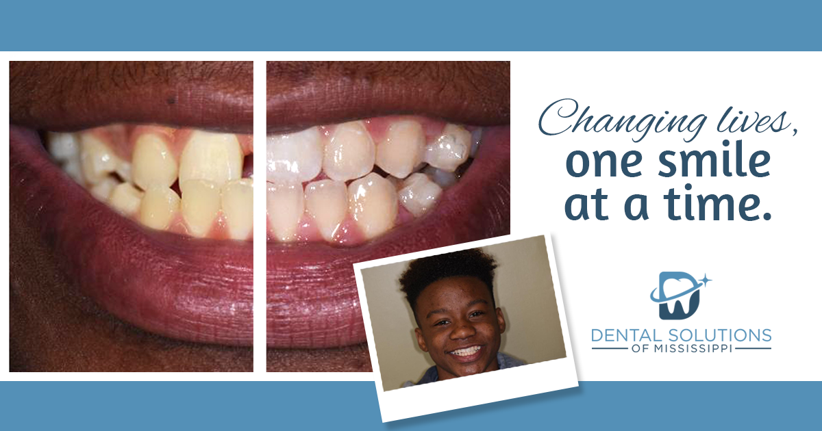 changing lives one smile at a time in canton MS