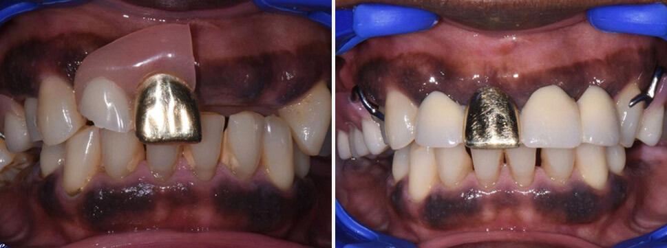 Removable Dentures before and after