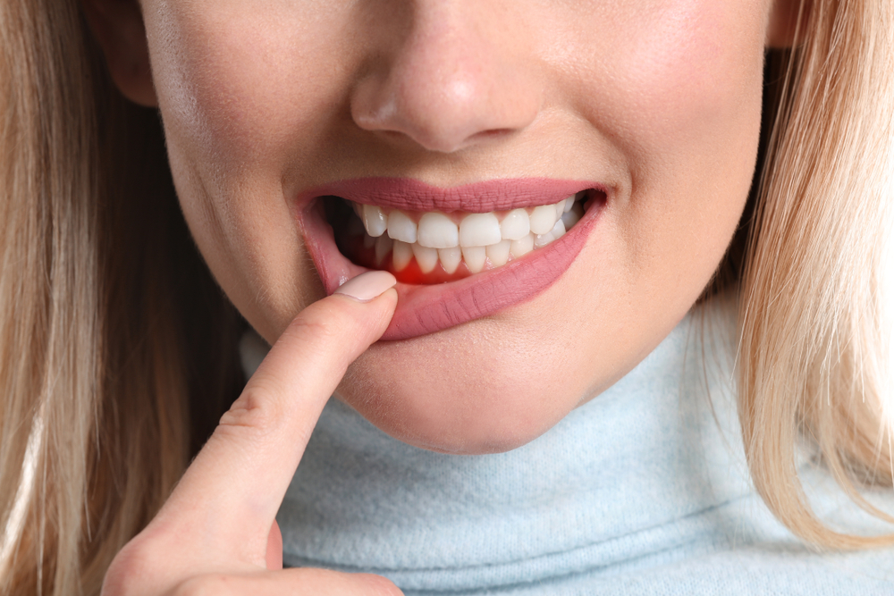 Periodontal Disease and Cancer: Is There A Link